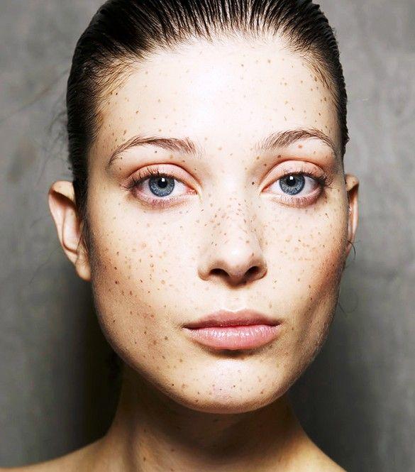 fakides freckles model