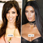 kim kardashian, nose job