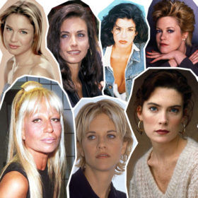 Before & After: Οι celebrities με τις πιο αποτυχημένες πλαστικές επεμβάσεις