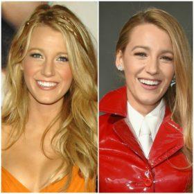 Blake Lively: Οι αλλαγές στην εμφάνισή της μέσα από 10+1 φωτογραφίες